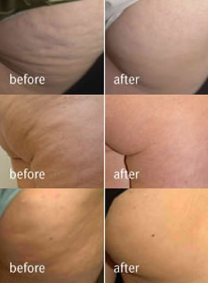 velashape1 An Introduction To Root Details For Fort Rice Cellulite Clinic
